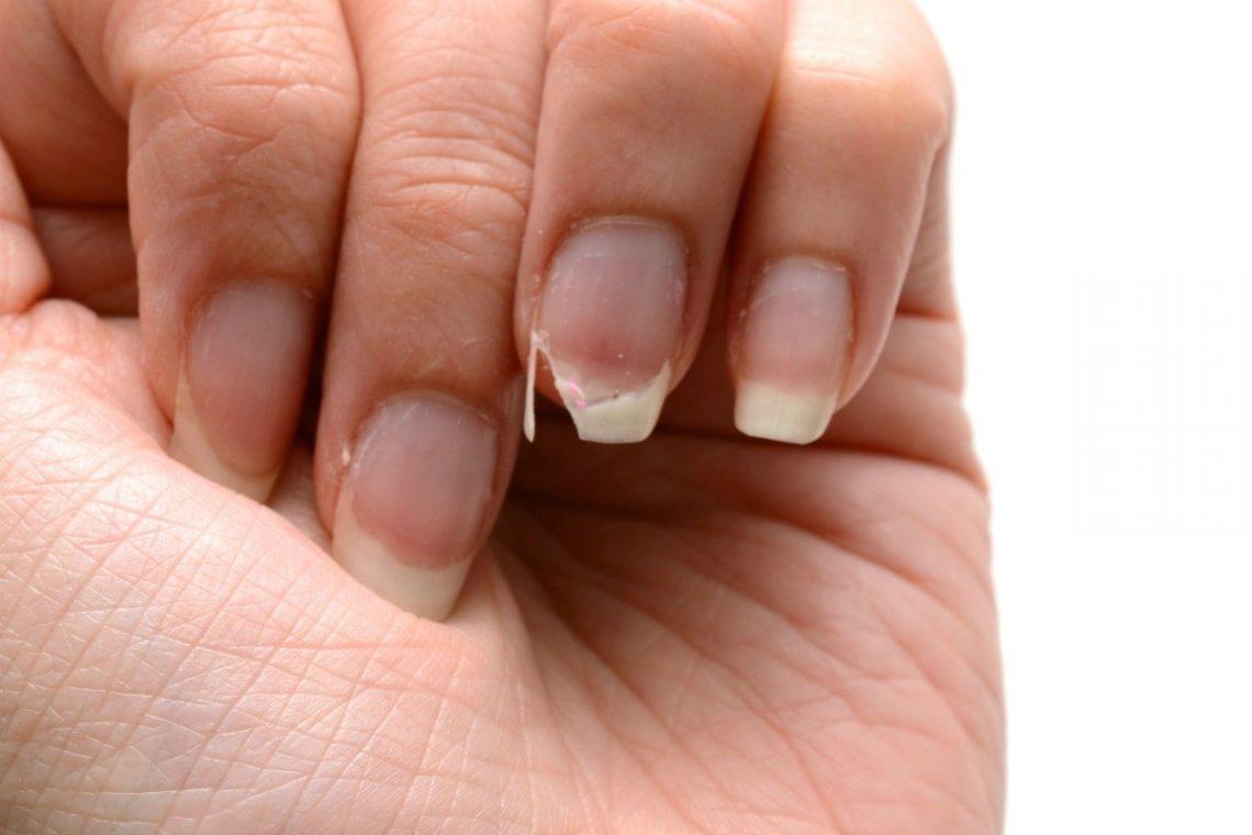 przyczyny łamliwych paznokci